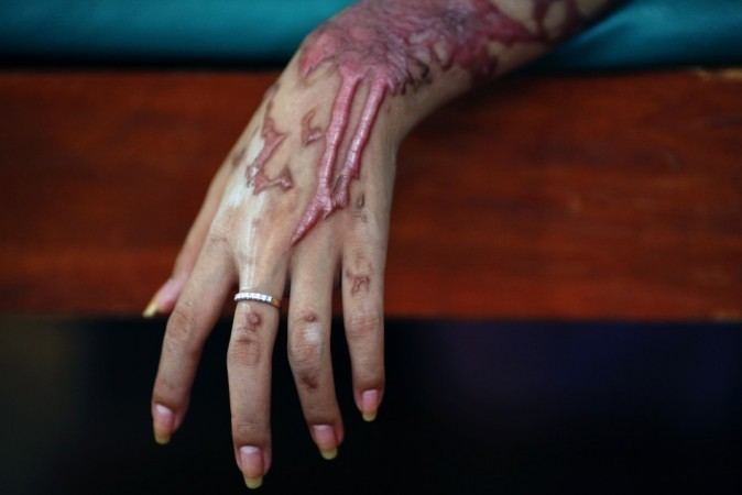 Acid Attack Victimhttp://graphic1.ibtimes.co.in/www/img/adm/closebt.png