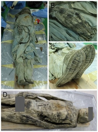 Korean Mummy Diagnosed with Hernia 300 Years Later (Plos One)