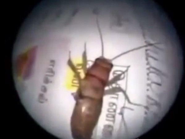 Doctor Pulls Out Three-inch Insect Alive from Ear Canal