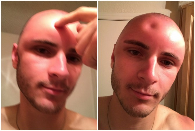 Weird dent on man's forehead shows why you should always wear sunscreen