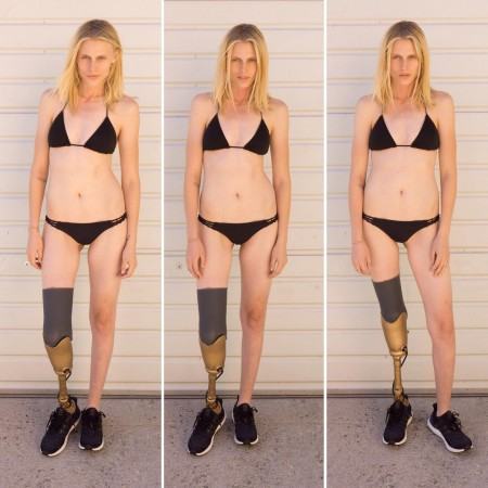 Toxic Shock Syndrome Took Her Leg. Now She'll Lose The Other