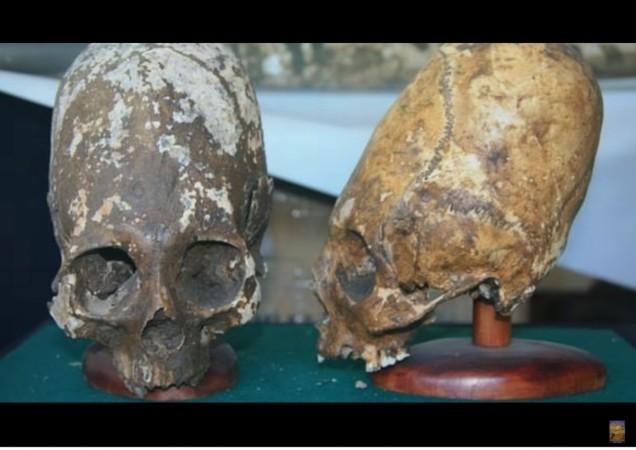 Paracas skulls,