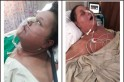 Watch: Mumbai hospital failed to help Eman Ahmed Abdulati lose tag of world's heaviest woman, claims sister