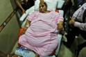 World's heaviest woman Eman Ahmed dies in Abu Dhabi hospital