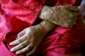 Woman attacked with acid, 'possessive' female colleague under scanner