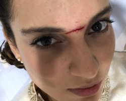 """Kangana was shooting here on Wednesday with co-star Nihar Pandya. The """"Queen"""" star was rushed to the Apollo Hospital amidst pain and blood loss. She got 15 stitches on the forehead and has been advised rest for four days. """"I am a bit embarrassed to be thrilled to have a battle scar on my face. Also, people from my team have been telling me that it's like that 'Peshwa teeka' that 'Manikarnika' wore,"""" Kangana said in a statement."""