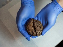 Archaeologists excavating a Spanish Civil War-era mass grave have found the naturally preserved brains of 45 people, eight decades after they were shot and buried on a hillside.