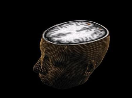 Brain changes linked with conduct disorder