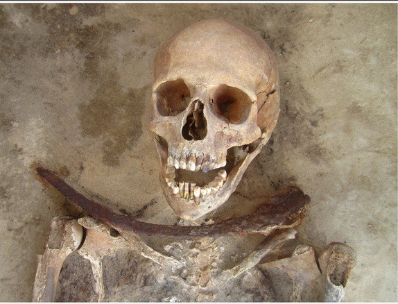 Polish vampires buried with sickle across ther neck died of cholera
