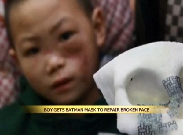 Chinese Boy with Batman-style Titanium Mask Inside His Face