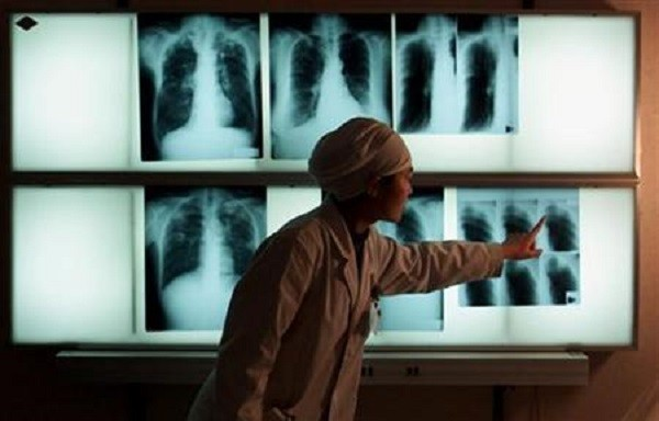 A Chinese doctor examines an x-ray of a tuberculosis patient at the Beijing Tuberculosis
