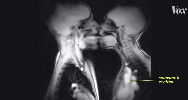 MRI Scanner image of two people kissing