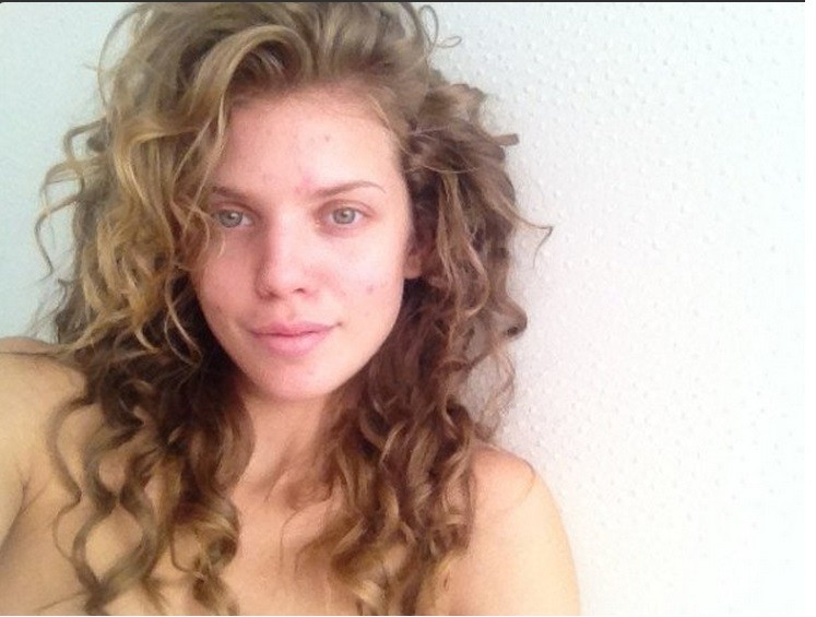 Annalynn McCord with pimples
