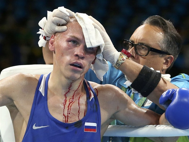 Rio Olympics 2016,Rio Olympics,Worst Injuries at Rio Olympics,Worst Injuries at the 2016 Rio Summer Olympics,Summer Olympics,injuries at Rio Olympics 2016,injuries at Rio Olympics,Olympic Injuries