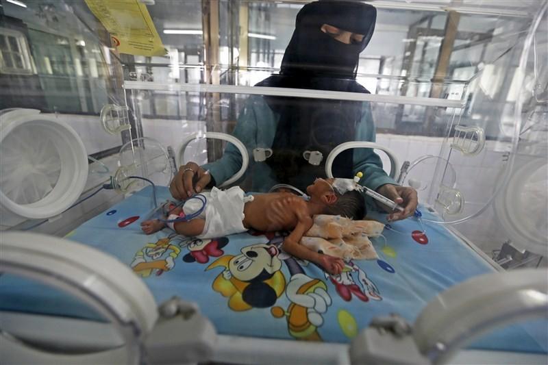 Starving children of Yemen,Starving children,UNICEF,Yemen,Yemen childrens,Horrifying images,Horrifying imagesof Childrens