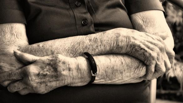 Alzheimer's disease, elderly, hands