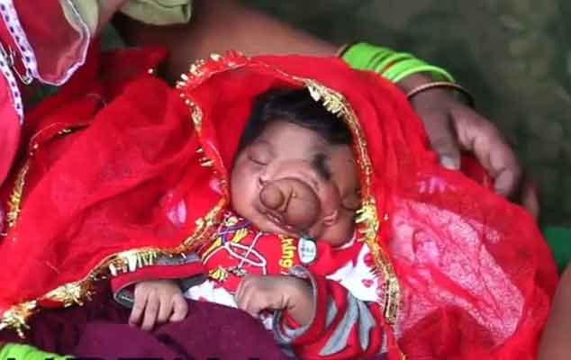 Aligarh: Baby Born with 'Trunk' Worshipped as Lord Ganesha ...