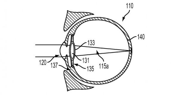 "Google filed a patent called ""Intra-ocular device"" in 2014"