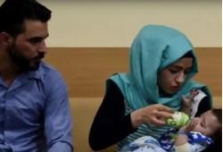 Iraqi baby, polymelia, health, rare condition, genetic, baby, hydra syndrome,