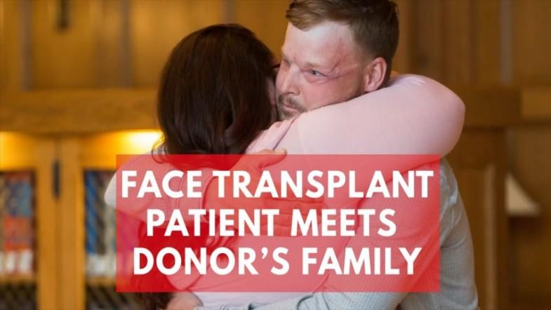 Heartwarming moment face transplant patient meets donors family