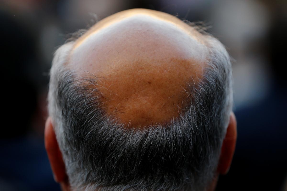 Regrow Hair Naturally India