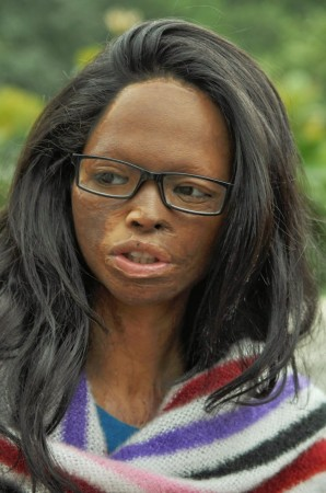 A victim of acid attack