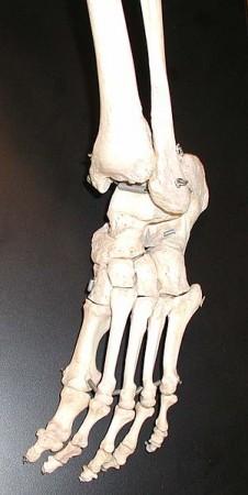 Mummified Bone (Representational Image) [Wikimedia Commons]