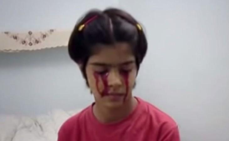 13-year-old girl Twinkle Dwivedi Cries Blood.