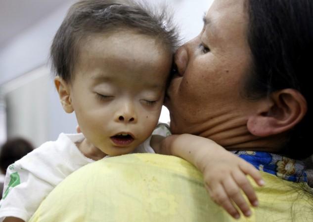 children heart diseases