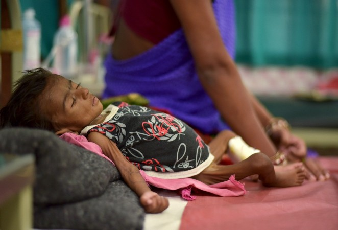 malnutrition child
