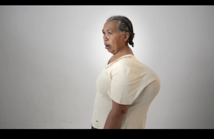 This woman had a giant lump on her back for 4 decades! - IBTimes India