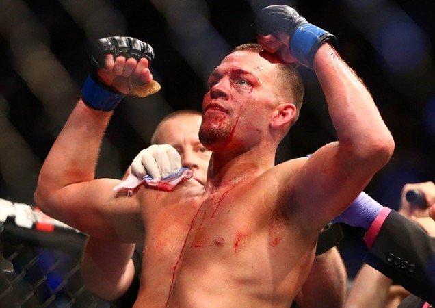 Nate Diaz, Nate Diaz cannabis, cannabis, UFC 202, Nate Diaz UFC 202, UFC news, marijuana, Nate Diaz vaping, Nate Diaz talks about the new UFC owners, Conor McGregor