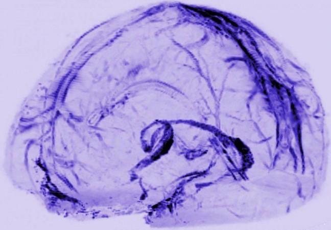 brain, lymphatic vessels,