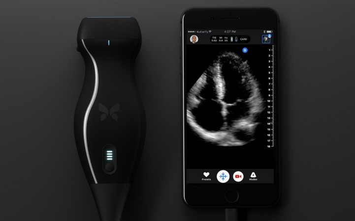 Butterfly iQ ultrasound machine and iPhone