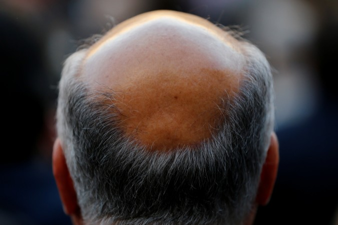 A man with baldness is seen in Seville, southern Spain April 6, 2016.