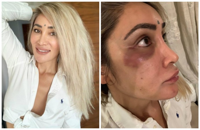 Sofia Hayat physically assaulted