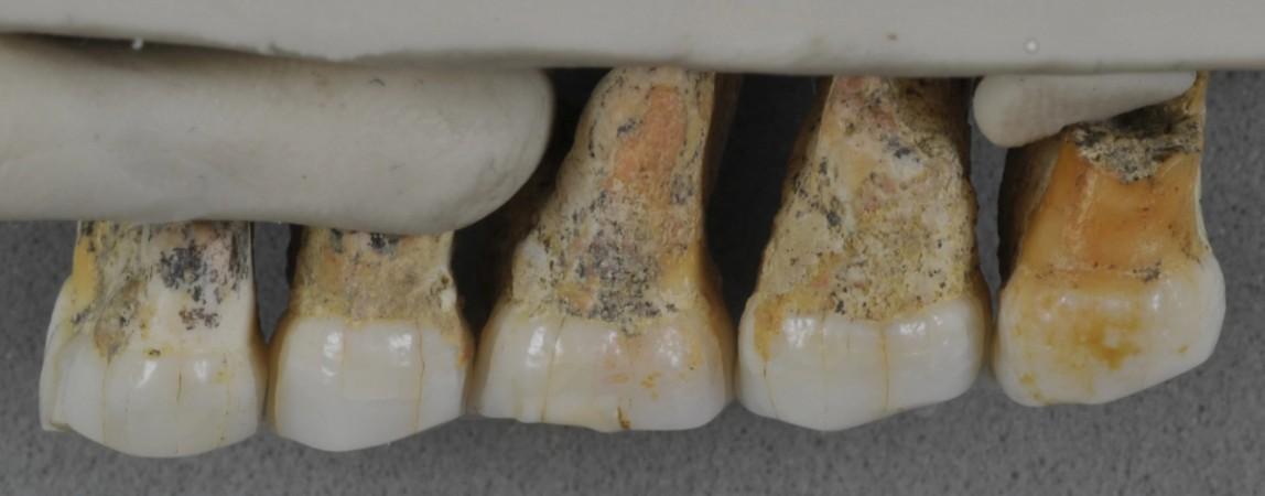 Teeth of hobbit-like dwarf humans Homo luzonensis