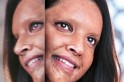 First-look out: Deepika Padukone as acid-attack survivor Malti in Chhapaak