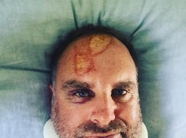Matthew Hayden fractures spine in surf accident
