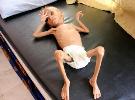 Shocking pictures of Yemeni children suffering from malnutrition will break your heart!