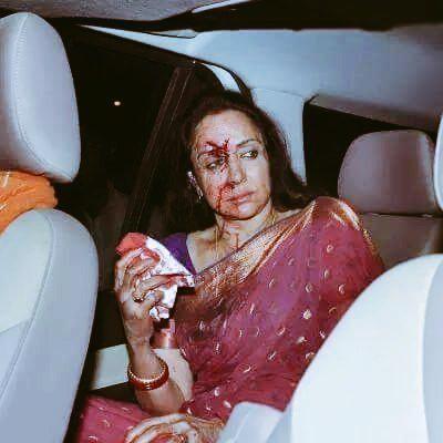 Hema Malini Car Accident,Hema Malini,Car Accident,ACTRESS Hema Malini,Hema Malini injured in road accident,Hema Malini injured,actress Hema Malini injured