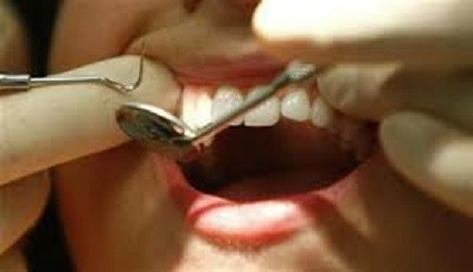 New Pain-free Tooth Decay Treatment to Replace Conventional Dental Drills (Representational Image)