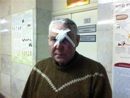 A man identifying himself as Viktor poses for a photograph after receiving treatment for injuries sustained from a shock wave that followed after a falling object was sighted in the sky in the Urals region, at an emergency room in a hospital in Chelyabins