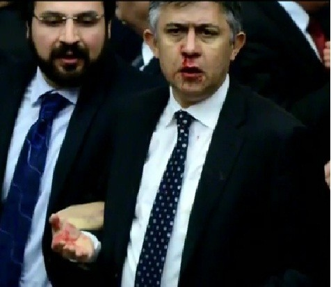 A Turkish MP with a bloody nose/videograb
