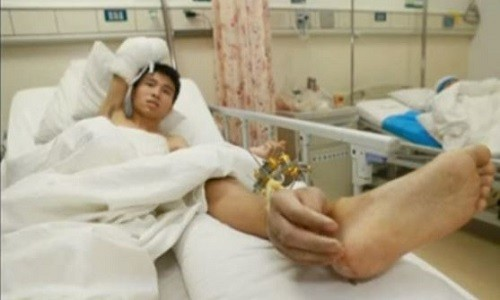 Chinese man with hand attached to ankle