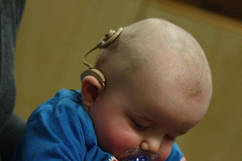 cochlear implants, hearing aid