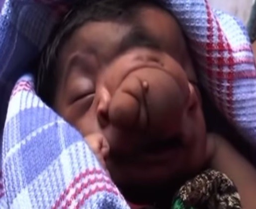 Baby girl born with trunk-like growth between her eyes is worshipped by villagers in Aligarh, Uttar Pradesh