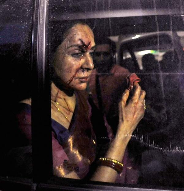 Hema Malini Car Accident,Hema Malini,Car Accident,ACTRESS Hema Malini,Hema Malini injured in road accident,Hema Malini injured,actress Hema Malini injured