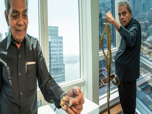 Shridhar Chillal,Shridhar Chillal longest nails,longest nails,longest nails cuts them,Guinness World Record,Guinness World Record for longest nails