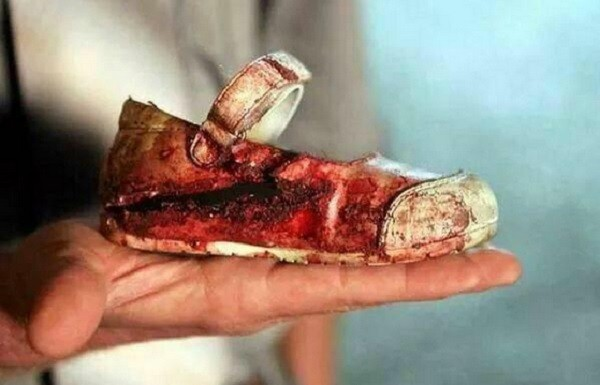 A hoax claimed that the image of a bloodied shoe of a little girl was taken from the Peshawar attack.